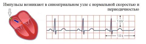 Синусоидный ритм сердца – норма на ленте ЭКГ