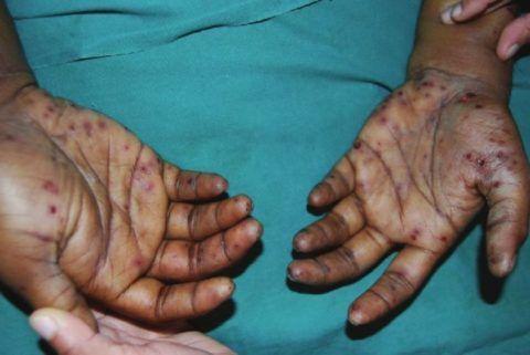 Проявления септического эндокардита