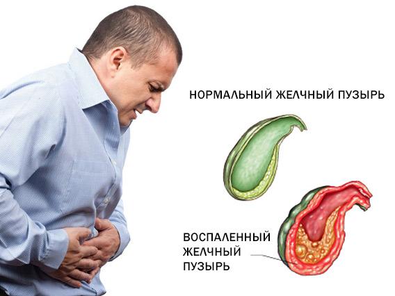 Боль и другие признаки холецистита