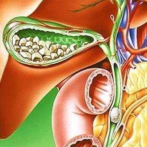 Симптоматика и лечение калькулезного холецистита