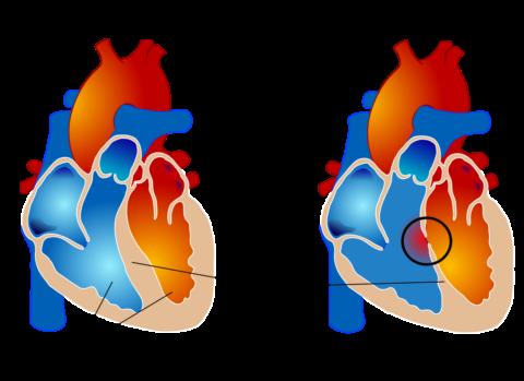 Разрыв сердечной стенки чаще происходит в области перегородки между желудочками