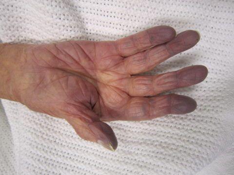 Синюшность кончиков пальцев