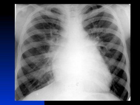 На рентгенографии обнаруживается деформация и увеличение сердца
