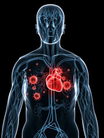Распространенность эндокардита — 6-10 случаев на 100000 населения