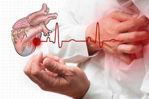 Самым серьезным последствием, которое развивается у многих больных развивается хроническая сердечная недостаточность