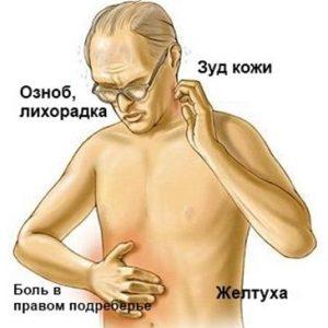 Симптомы и лечение холестатической желтухи