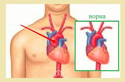 Аневризма аорты (грудной отдел)