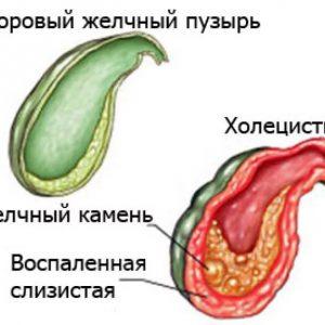 Воспаление желчного пузыря лечение антибиотиками