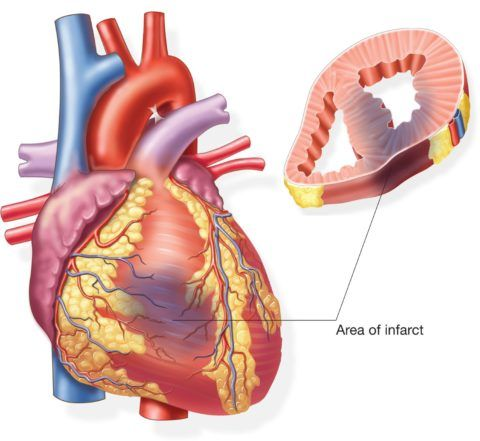 Крупноочаговый инфаркт может привести к шоку
