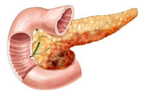 Панкреатит - возможна причина боли