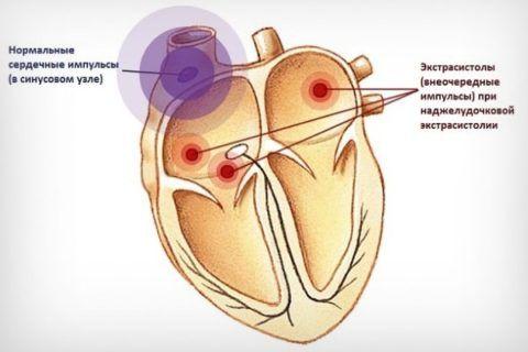 Экстрасистолия – внеочередное сокращение сердца.