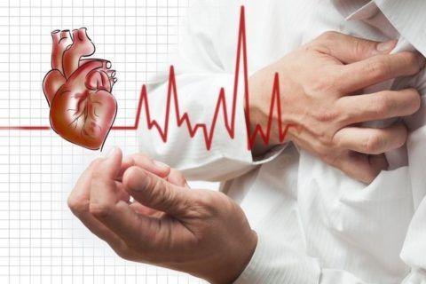 Нарушение ритма сердца – симптом стенокардии.