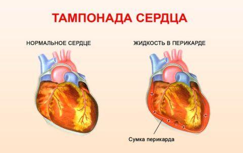 Схематическое сравнение нормального состояния сердца и тампонады