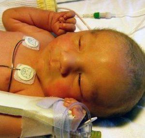 Ядерная желтуха у новорожденных
