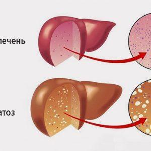 Симптомы и лечение гепатоза печени