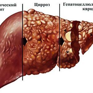 Сколько живут с циррозом печени