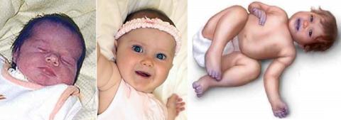 Разная степень цианоза у новорожденного, грудничка и 2-х летнего ребенка