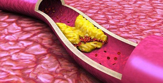 Частично устранимые причины возникновения атеросклеротических бляшек