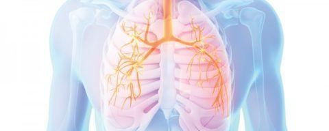 Тяжелая форма дыхательной недостаточности