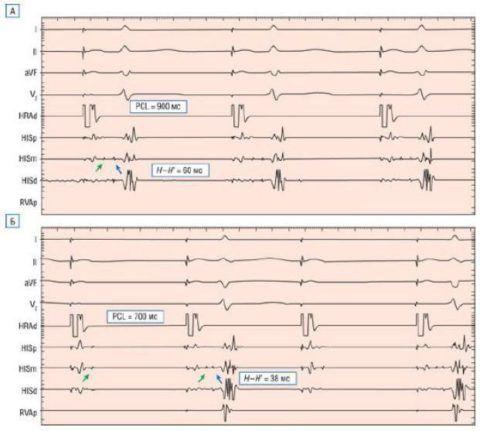 Электрофизиологическое исследование, показало интрагисиальную блокаду, вызванную частой стимуляцией предсердий