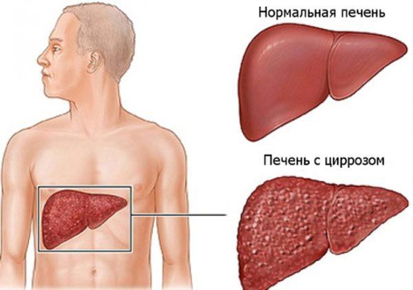 Признаки и описание цирроза печени