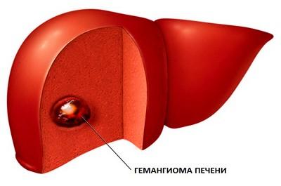 Лечение капиллярной гемангиомы печени