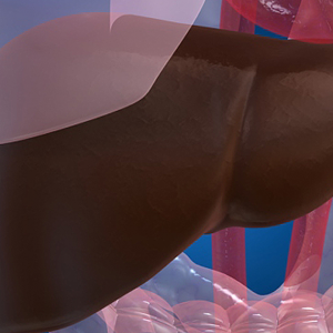 Стеатогепатоз печени: причины заболевания, симптомы, лечение