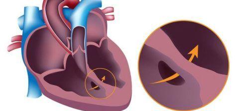 Врожденные пороки развития сердца