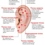 Схематическое расположение биологически активных точек на ушах и области их воздействия.