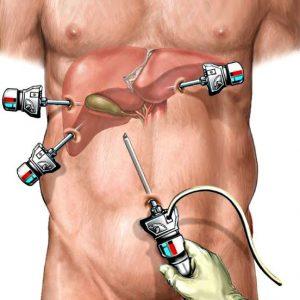 Комплекс упражнений после лапароскопии желчного пузыря