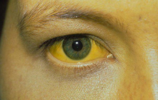 Какими способами передается желтуха