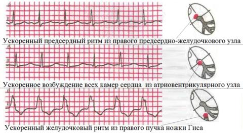 Примеры патологических вариантов ритма сердца