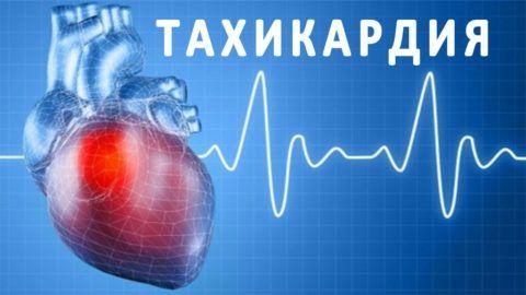 Оказание помощи при увеличении числа сердечных сокращений должно осуществляться в условиях стационара. Что делать, приступ тахикардии определяет лечащий кардиолог.