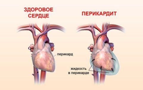 Лечение перикардита – одна из важнейших мер профилактики тампонады сердца