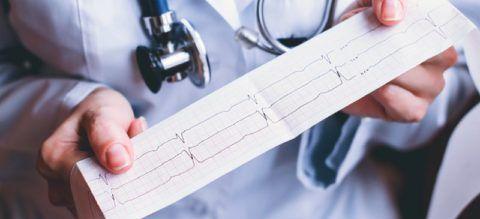 В дословном переводе с греческого термин «брадикардия» обозначает «медленное сердце»