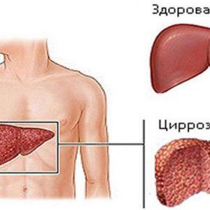 Гепатит С что это за болезнь, ее симптомы и методы лечения